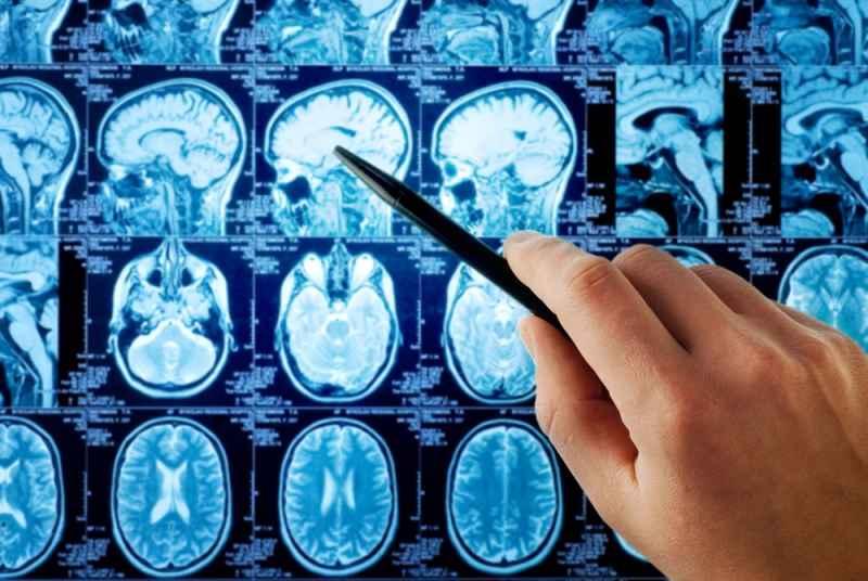 recunoastere-boli-neurologice